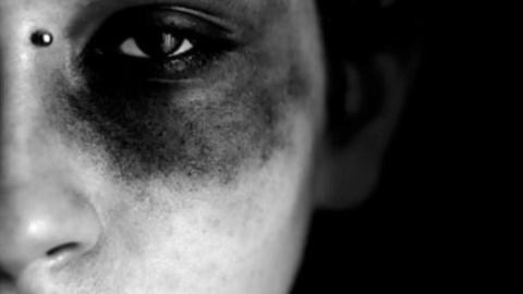 Son dakika Adana haberleri... Eşi tarafından kemerle dövülen kadın 'affedin,seviyorum' dedi