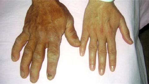 Akromegali hastalığı nedir, nasıl ortaya çıkar, riskli kişiler kimler?