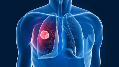 Kadınlarda akciğer kanseri oranı arttı!