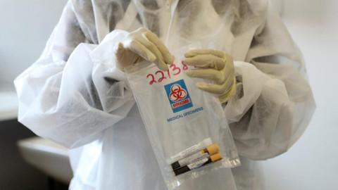 AstraZeneca'nın aşı çalışmaları durduruldu! ikinci gönüllüde de yan etki görüldü