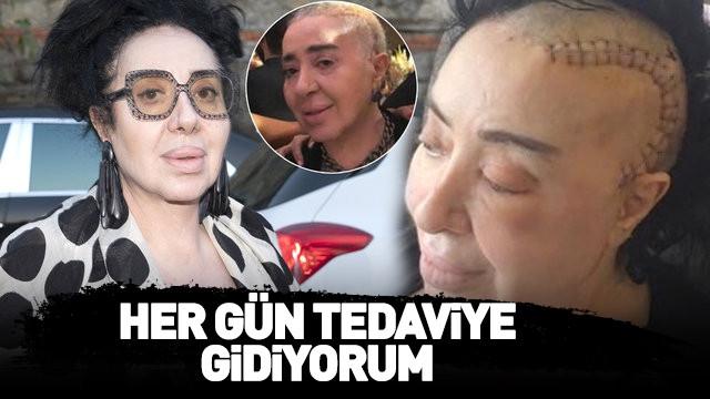 Nur Yerlitaş: Her gün tedaviye gidiyorum