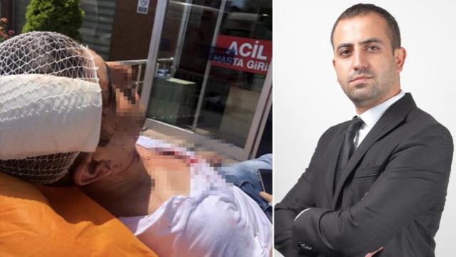 Akit Haber Müdürü Murat Alan'a saldırı