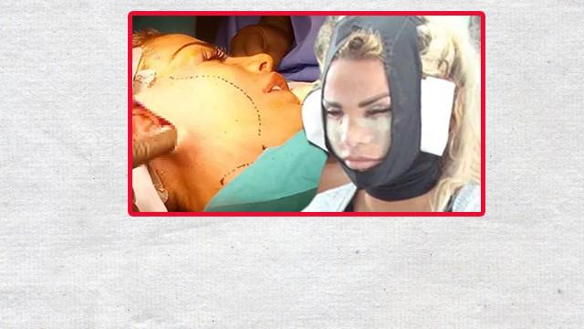 Ünlü şarkıcı estetik ameliyatının her anını paylaştı!