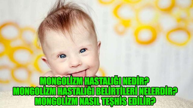 Mongolizm hastalığı nedir? Mongolizm hastalığı belirtileri nelerdir? Mongolizm nasıl teşhis edilir?