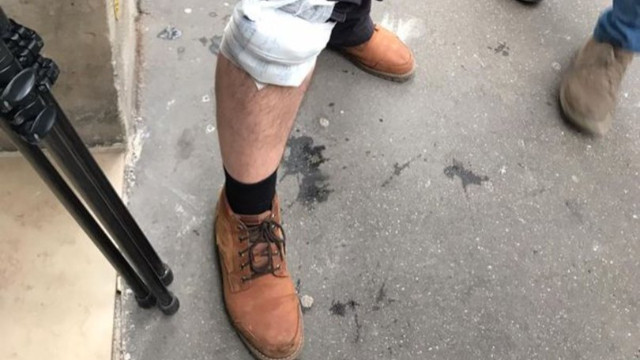 AA Foto Muhabiri Paris'te yaralandı