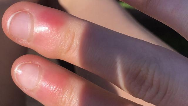 Korona sonrası korkutan tehlike! El ve ayak parmaklarında çıkıyor