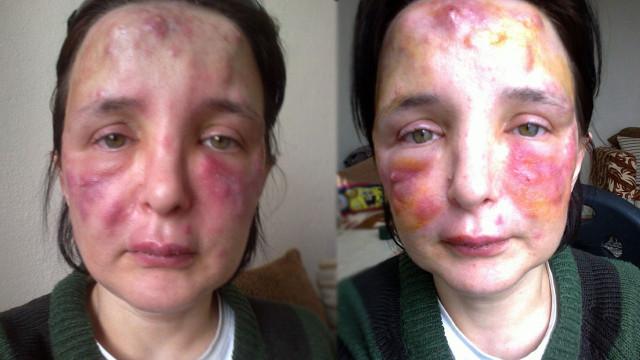 Yüzüne dolgu yaptığı kadının hayatını kararttı! İşte sahte doktorun cezası