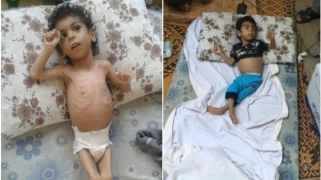 Açlıktan kedi yiyen Suriyeli çocuk Türkiye'ye getirildi