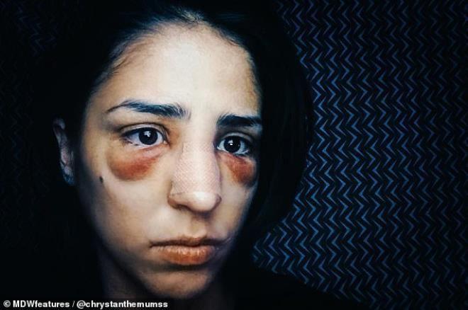 Psikolojik sorunu için doktora giden genç kadının komaya kadar uzanan hazin sonu - Sayfa 2
